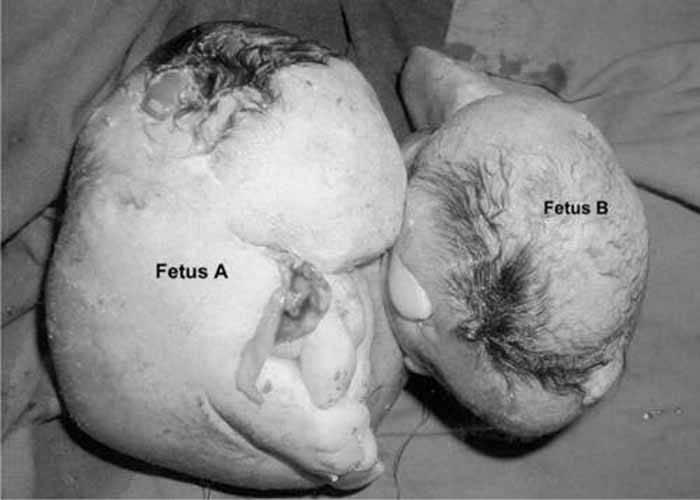 แฝดปรสิต จากเคสของเด็กทารกวัย 6 เดือน ชาวอินเดีย